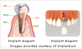 Implant Dentistry at Dental Care Professionals