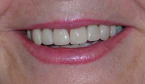 After Fixing Teeth Colour