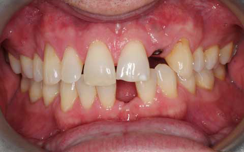 Fix Missing Implants and Gaps Between Teeth: Before Treatment ph