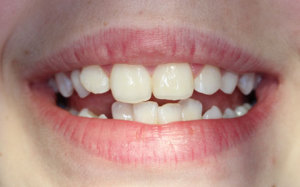 After broken tooth was repaired