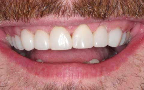 after_fix-chipped-teeth