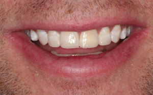 After treatment photo where short teeth from grinding have been made longer