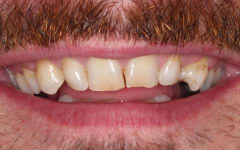before_fix-chipped-teeth