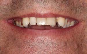 Snaggle tooth canine teeth out of alignment