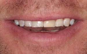 Before treatment photo of short teeth from grinding