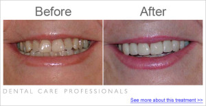 Dental Care Professionals case study 2011 whitening yellow teeth