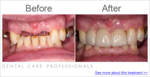 Dental Care Professionals case study 2013 new smile denture
