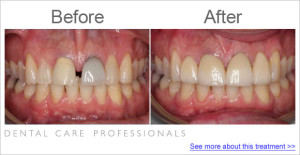Dental Care Professionals case study 2014 crown colour matching