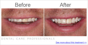 Before and After: Treatment to fix teeth shortened by teeth grinding