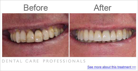 Photo of patient teeth before and after dental restoration on ol