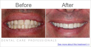 Before and after treatment to replace front teeth crowns