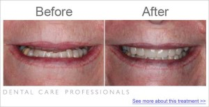 Getting a natural full and even smile with cosmetic dentistry