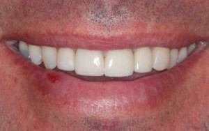 Dental Care Professional patient after treatment to whiten and lengthen small teeth