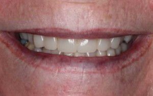After cosmetic dental treatment to create a natural even smile