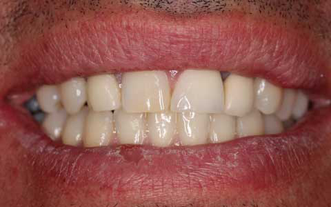 Dental Care Professionals patient with short yellow teeth before treatment