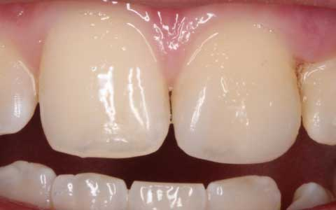 after-dental-treatment_fix-front-broken-tooth