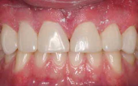 after-dental-treatment_fix-short-teeth-wearing