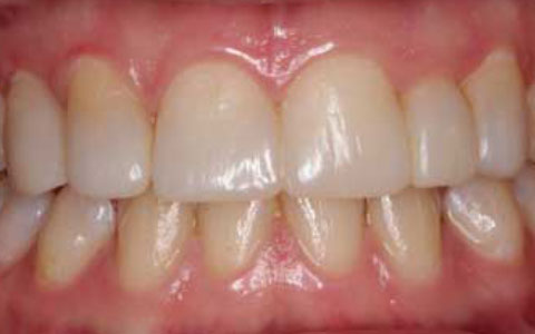 after-dental-treatment_fix-small-incisor
