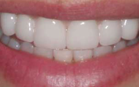 after-dental-treatment_fix-small-teeth-2