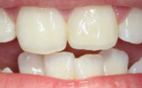 after-dental-treatment_repaired-broken-tooth