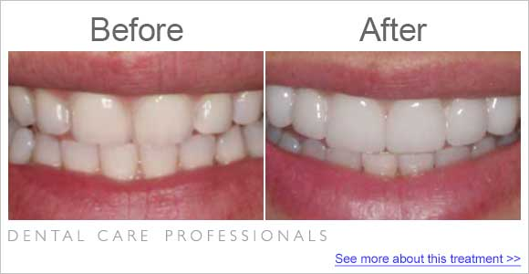 before-after-dentist-small-teeth-2