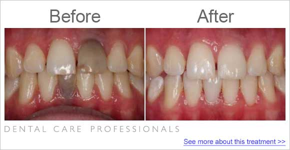 before-after-dentist_fix-black-teeth
