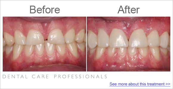 before-after-dentist_fix-short-teeth-wearing