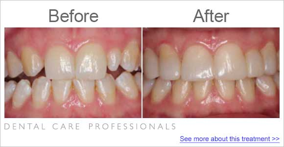 before-after-dentist_fix-small-incisor