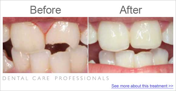 before-after-dentist_repaired-broken-tooth