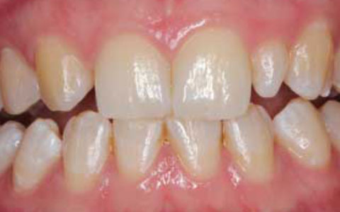before-dental-treatement_fix-small-incisor