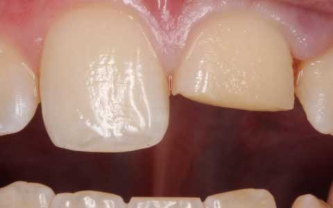 before-dental-treatment_fix-front-broken-tooth