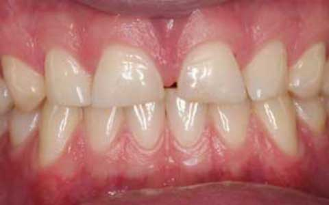 before-dental-treatment_fix-short-teeth-wearing