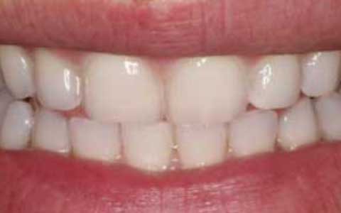 before-dental-treatment_fix-small-teeth-2
