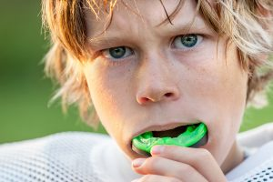 Sports Mouthguards from Dental Care Professionals