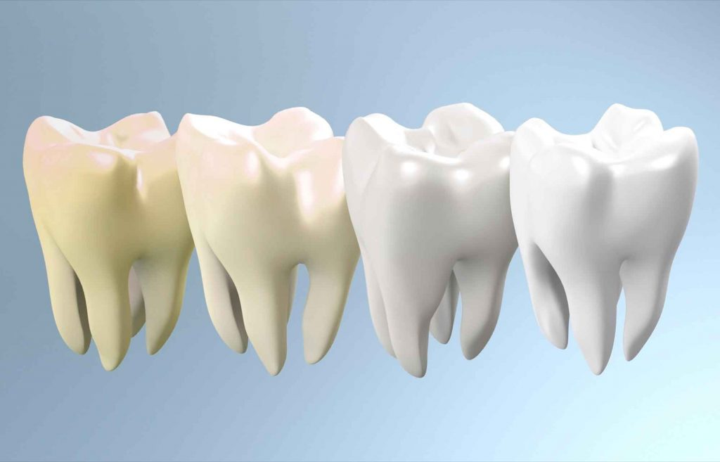 Different shades of teeth colour
