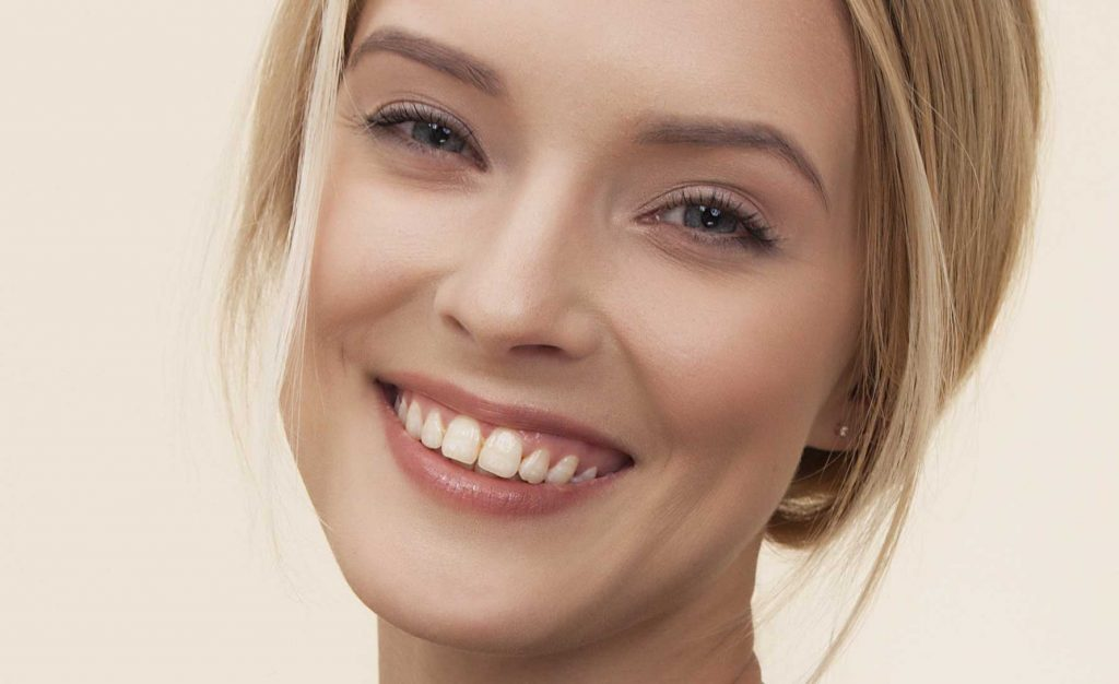 White teeth with pale yellow blemishes